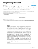 """Báo cáo y học: """"Coccidioides posadasii infection alters the expression of pulmonary surfactant proteins (SP)-A and SP-D"""""""