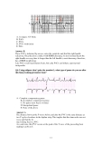 ECG for MRCP teaching notes and best of fives with ECG pictures – part 2