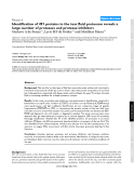 """Báo cáo y học: """"Identification of 491 proteins in the tear fluid proteome reveals a large number of proteases and protease inhibitors"""""""