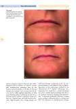 Cosmetic dermatology - part 8
