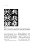 NEUROLOGICAL FOUNDATIONS OF COGNITIVE NEUROSCIENCE - PART 3