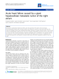 "Báo cáo y học: ""Acute heart failure caused by a giant hepatocellular metastatic tumor of the right atrium"""