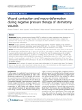 """Báo cáo y học: """"Wound contraction and macro-deformation during negative pressure therapy of sternotomy wounds"""""""