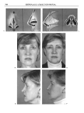Rhinoplasty  Dissection Manual - part 7