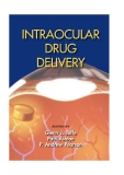 Intraocular Drug DelIvery - part 1