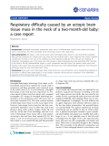 """Báo cáo y học: """" Respiratory difficulty caused by an ectopic brain tissue mass in the neck of a two-month-old baby: a case report"""""""