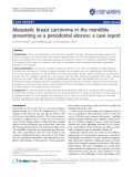 "Báo cáo y học: ""Metastatic breast carcinoma in the mandible presenting as a periodontal abscess: a case report"""