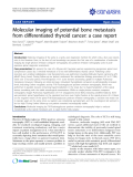 """báo cáo khoa học: """" Molecular imaging of potential bone metastasis from differentiated thyroid cancer: a case report"""""""