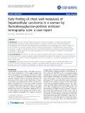 "Báo cáo y học: "" Early finding of chest wall metastasis of hepatocellular carcinoma in a woman by fluorodeoxyglucose-positron emission tomography scan: a case report"""