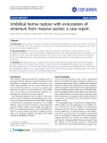 "Báo cáo y học: ""Umbilical hernia rupture with evisceration of omentum from massive ascites: a case report"""