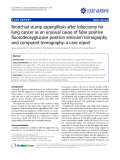 "Báo cáo y học: "" Treatment of stasis dermatitis using aminaphtone: Bronchial stump aspergillosis after lobectomy for lung cancer as an unusual cause of false positive fluorodeoxyglucose positron emission tomography and computed tomography: a case report."""
