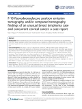 "Báo cáo y học: ""F-18 fluorodeoxyglucose positron emission tomography and/or computed tomography findings of an unusual breast lymphoma case and concurrent cervical cancer: a case report"""