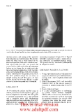 Chondral Disease of the Knee - part 7