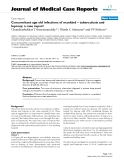 """Báo cáo y học: """" Concomitant age old infections of mankind – tuberculosis and leprosy: a case report"""""""