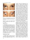 Fundamentals of Clinical Ophthalmology (part 9)