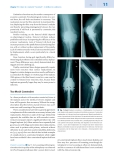 Total Knee Arthroplasty - part 3