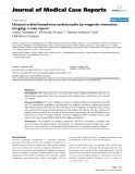 """Báo cáo y học: """" Unusual orbital lymphoma undetectable by magnetic resonance imaging: a case report"""""""