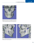 Cephalometry A Color Atlas and Manual -  part 8
