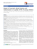 "báo cáo hóa học: ""  Impact of traumatic dental injuries and malocclusions on quality of life of young children"""