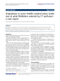 "Báo cáo hóa học: "" Angioplasty in acute middle cerebral artery stroke due to atrial fibrillation selected by CT perfusion: a case report"""