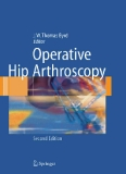Operative Hip Arthroscopy, Second Edition