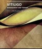 VITILIGO – MANAGEMENT AND THERAPY
