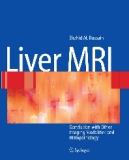 Liver MRI Correlation with Other Imaging Modalities and Histopathology