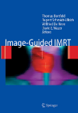Image-Guided IMRT