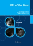 MRI of the Liver - 2nd Edition Imaging Techniques, Contrast Enhancement, Differential Diagnosis