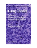 Lung Cancer Edited by Barbara Driscoll Volume I Molecular Pathology Methods and Reviews Lung Cancer Edited by Barbara Driscoll Volume I Molecular Pathology Methods and Reviews