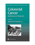 Colorectal Cancer Methods and Protocols