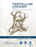 International Consultation on Testicular Cancer