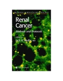 Renal Cancer Methods and Protocols