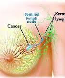 Lymphatic mapping and sentinel node biopsy in gynecological  cancers: a critical review of the literature