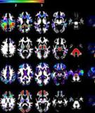 White Matter Changes Compromise Prefrontal Cortex Function in Healthy Elderly Individuals