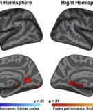 Cognitive function and brain structure correlations in healthy elderly East Asians