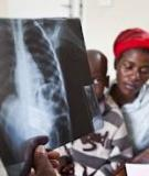 Pulmonary tuberculosis diagnostic delays in Chad: a multicenter, hospital-based survey in Ndjamena and Moundou