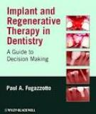 IMPLANT AND REGENERATIVE THERAPY IN DENTISTRY A GUIDE TO DECISION MAKING