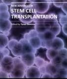 Innovations in Stem Cell Transplantation Edited by Taner Demirer