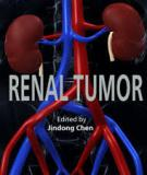 Renal Tumor  Edited by Jindong Chen