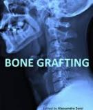 Bone Grafting Edited by Alessandro Zorzi and João Batista de Miranda
