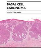 Basal Cell Carcinoma Edited by Vishal Madan